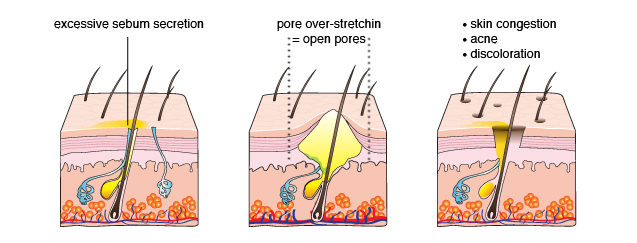 What are Open Pores?