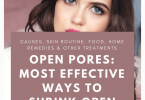 How to Get Rid of Open Pores on Face Permanently